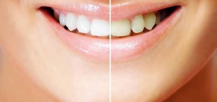 Diş Çürüğü Oluşumunu Arttırıcı Etkenler Nelerdir?
