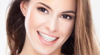 Ortodontik Tedavi Her Yaşta Mümkün Olur Mu?