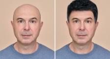 En Uygun Fiyatlı Saç Protezleri İçin Oscar Hair Saç Protez Merkezi